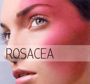 how to help reduce rosacea